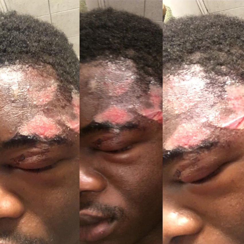 Uwimana Gasito posted photos of his injuries after alleging that officers used excessive force.
