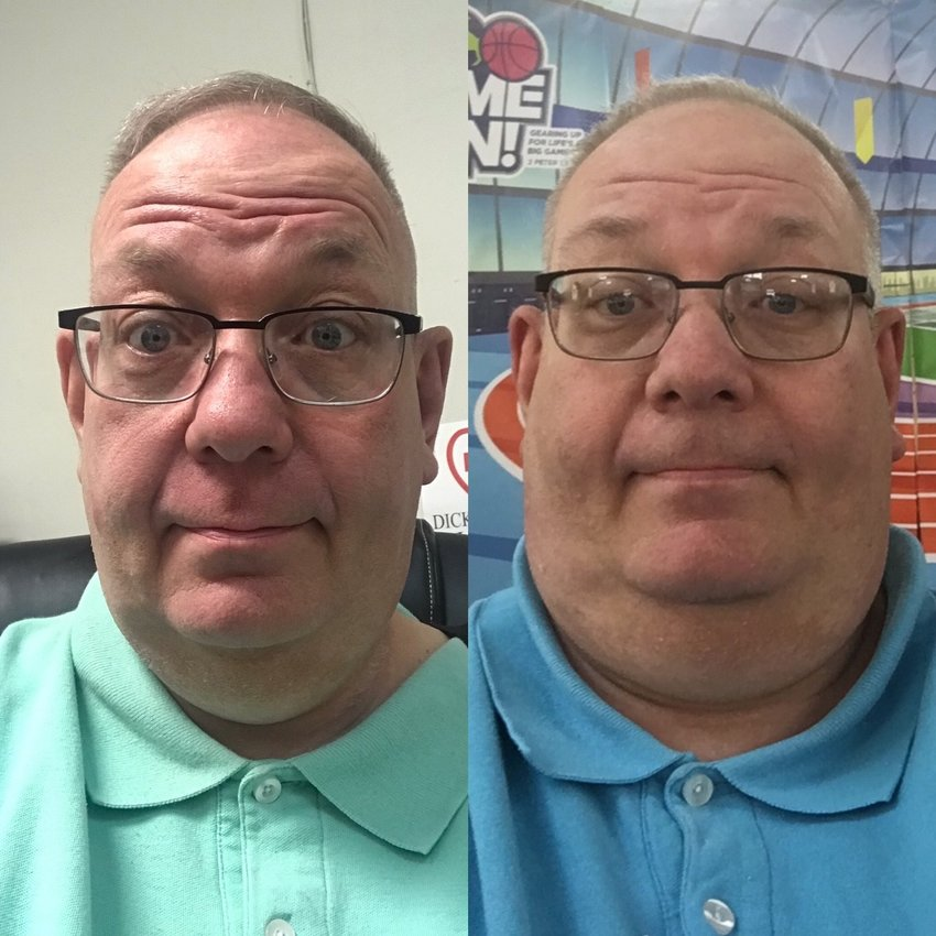Dicky Tiller before (right) and after weight loss surgery that has helped him lose more than 350 pounds.